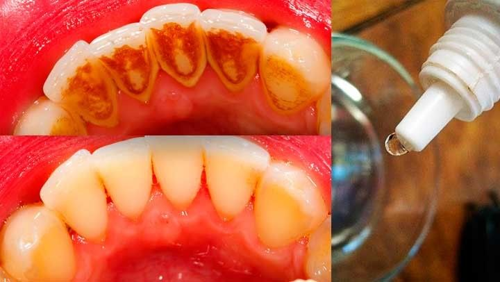 La placa dental es una biopelícula de bacterias en los dientes que pueden formar el sarro. Al principio, la placa es incolora, pero se convierte en amarillo cuando se forma el sarro. Las principales causas de la placa en los dientes son el tabaquismo y el consumo excesivo de café.