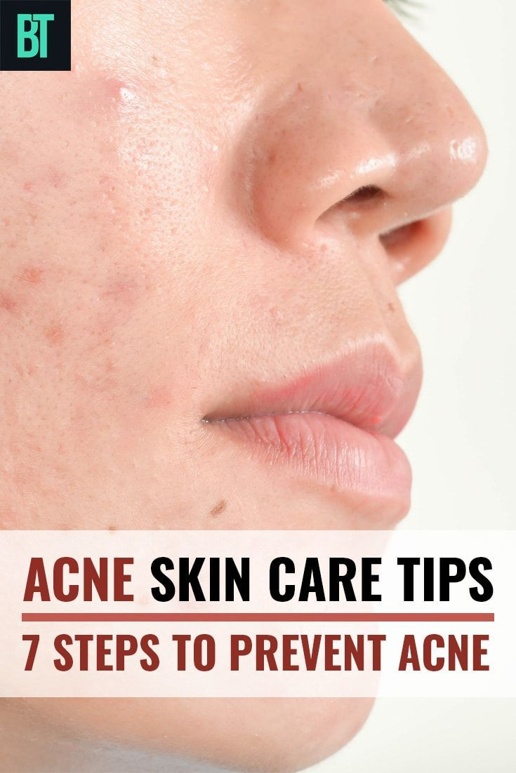 How To Treat Acne Prone Skin 7 Ways To Prevent Acne At Home Prevent Acne Pimple Free Skin Skin Care Acne