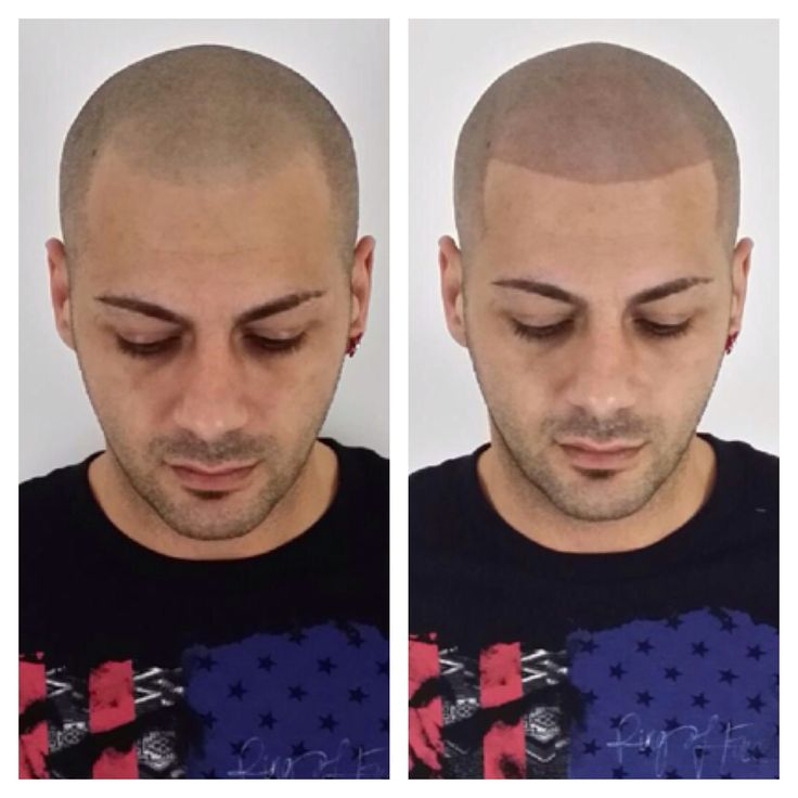 Before and after of an amazing procedure we did we are for Tattoo hair line