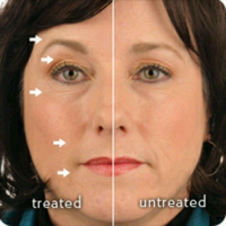 Despues de 3 meses de tratamiento de galvanic spa  facial con geles faciales