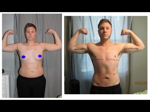 Результаты эстрогенотерапии у трансексуалов моему