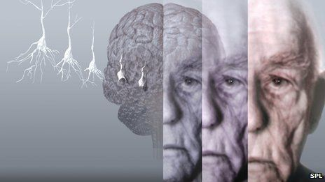 BBC News - Alzheimer's brain scan detects tau protein
