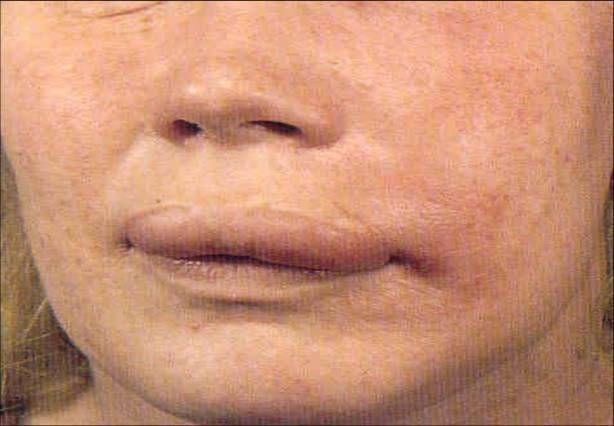 Angioedema é  uma forma de urticária que aparece como um inchaço nas partes mais…