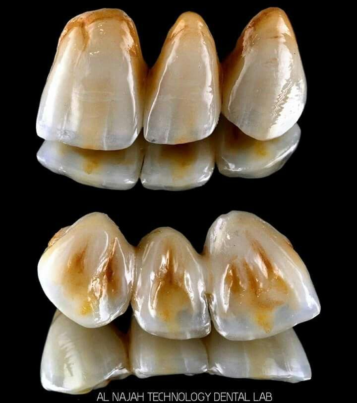 Halitosis Bad Breath Can Be Solved With Good Oral Hygiene Dental Ceramics Dental Crowns Dental Art