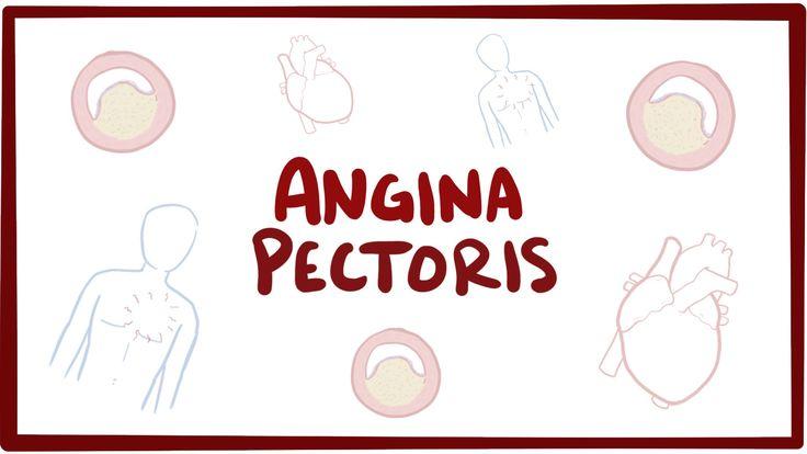 Angina pectoris (stable, unstable, prinzmetal, vasospastic) - symptoms &...