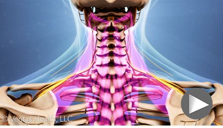 Find out what is causing a stiff neck based on the symptoms you have and then what should be done to remedy the situation.