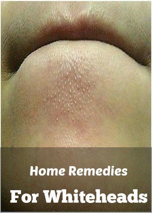 Home Remedies For Whiteheads | Medi Tricks