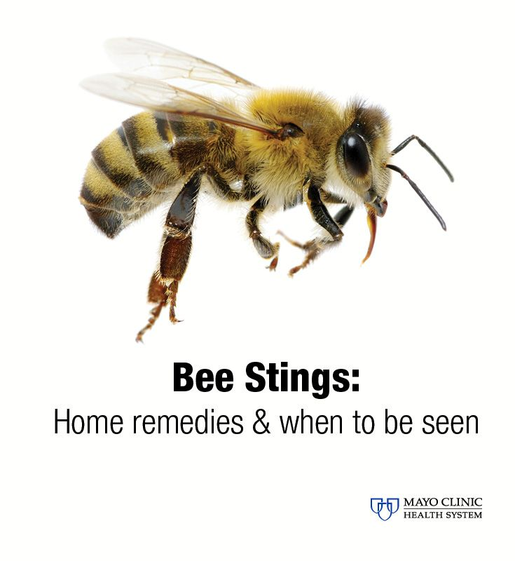 While their honey is sweet, their stings are not. Tips for taking care of bee stings.