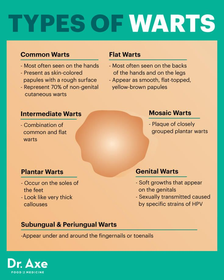 Types of warts - Dr. Axe #health #holistic #natural