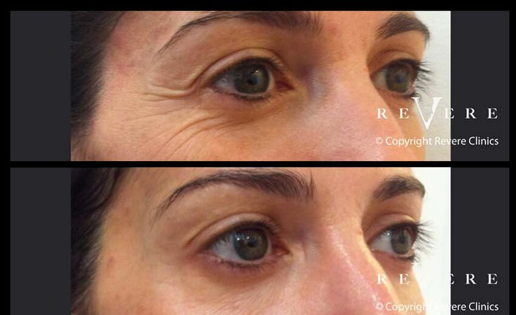 Botox by Expert Doctors at Revere Clinics | London, Northwood. #Botox #finelines #wrinkles #frownlines #crowsfeet #antiageing #nofrozenfaces #RevereClinics