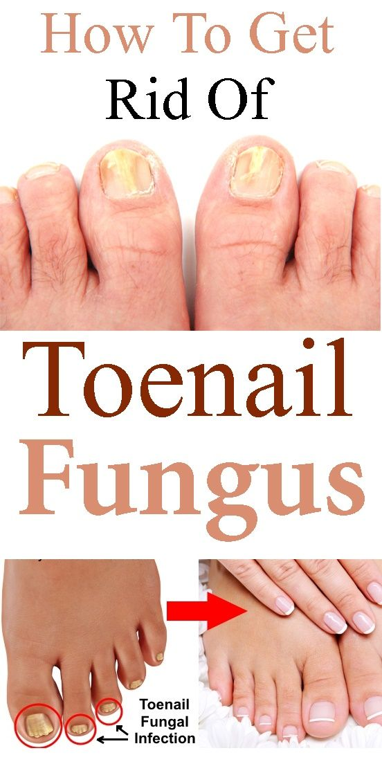Nail fungus is such a common problem these days that many people (like yourself) are searching for information on how to get rid of toenail fungus. But before we get into the ways to treat nail fungus, let's take a quick look at what we're dealing with… What Is Toenail Fungus? Fungal infections can arise …