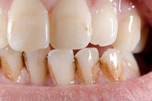 """El sarro es la acumulación de alimentos y residuos en el """"límite"""" entre las encías y la parte de atrás de las piezas dentarias que son rugosas."""
