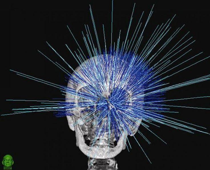 Στοχευμένη θεραπεία για τις εγκεφαλικές μεταστάσεις