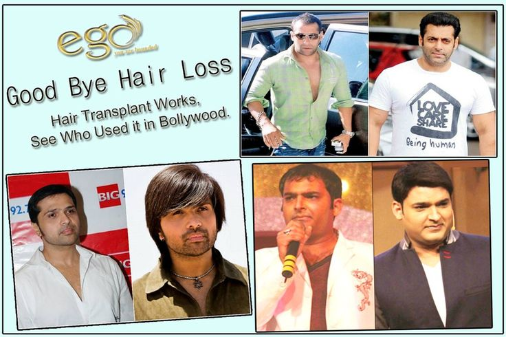 Good Bye #Hair Loss. So what are you waiting for ? Just SCHEDULE AN APPOINTMENT today for a free consultation and be a #Hero Again. Visit here: egowellness.tumblr.com #EgoWellness #Bangalore #Hubli #Mysore