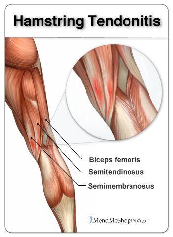 semimembranosus tendon - Google Search | Medical transcription | Pinterest | Search