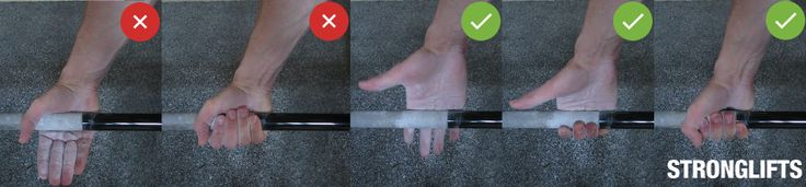 Remove calluses from lifting with a pumice stone. Grip the bar correctly to get less and smaller calluses. If you tear a callus Deadlifting, try these tips.