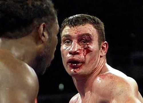 fotos fuertes boxeo