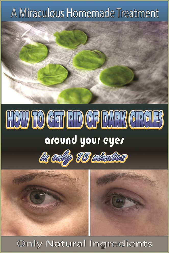 how to get rid of darkness around eyes