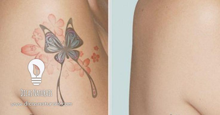 As tatuagens podem ser removidas cirurgicamente. Mas para quê gastar dinheiro e submeter-se a uma cirurgia se o pode fazer em casa? As cirurgias são dispendiosas e dolorosas. É certo que pode levar algum tempo, mas aos poucos conseguirá disfarçar a sua tatuagem. Deve ter em atenção que este procedimento não eliminará por completo os … Continued