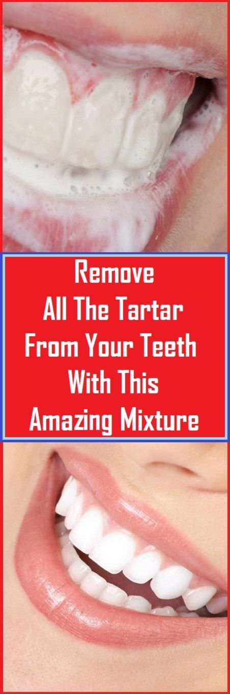 Remove allAThe Tartar From Your Teeth With This Amazing Mixture!!!