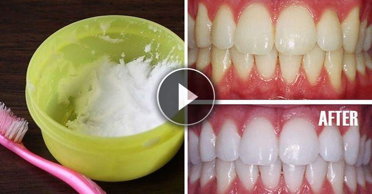 Lo sbiancamento dei denti solitamente viene fatto attraverso l'utilizzo di prodotti chimici che possono anche far male ai denti.