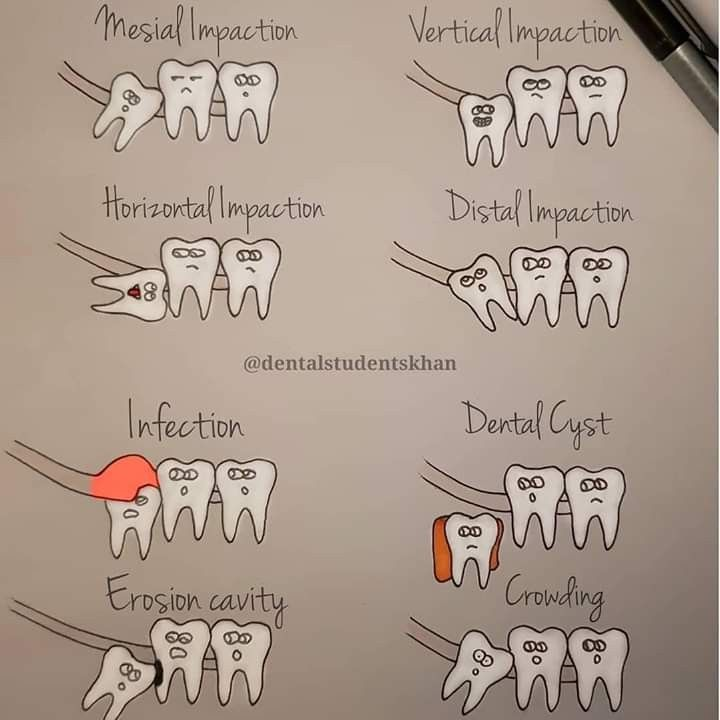 impartial tooth extraction healing process teethwhiteningmiami blackdentalhygienist  dental