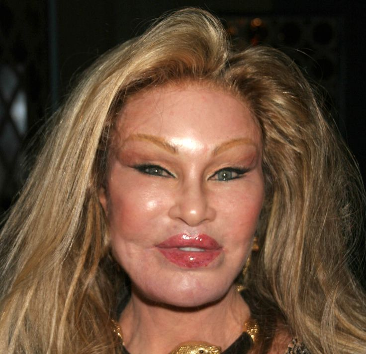 Jocelyn Wildenstein Plastic Surgery Before and After - http://celebie.com/jocelyn-wildenstein-plastic-surgery-before-and-after/