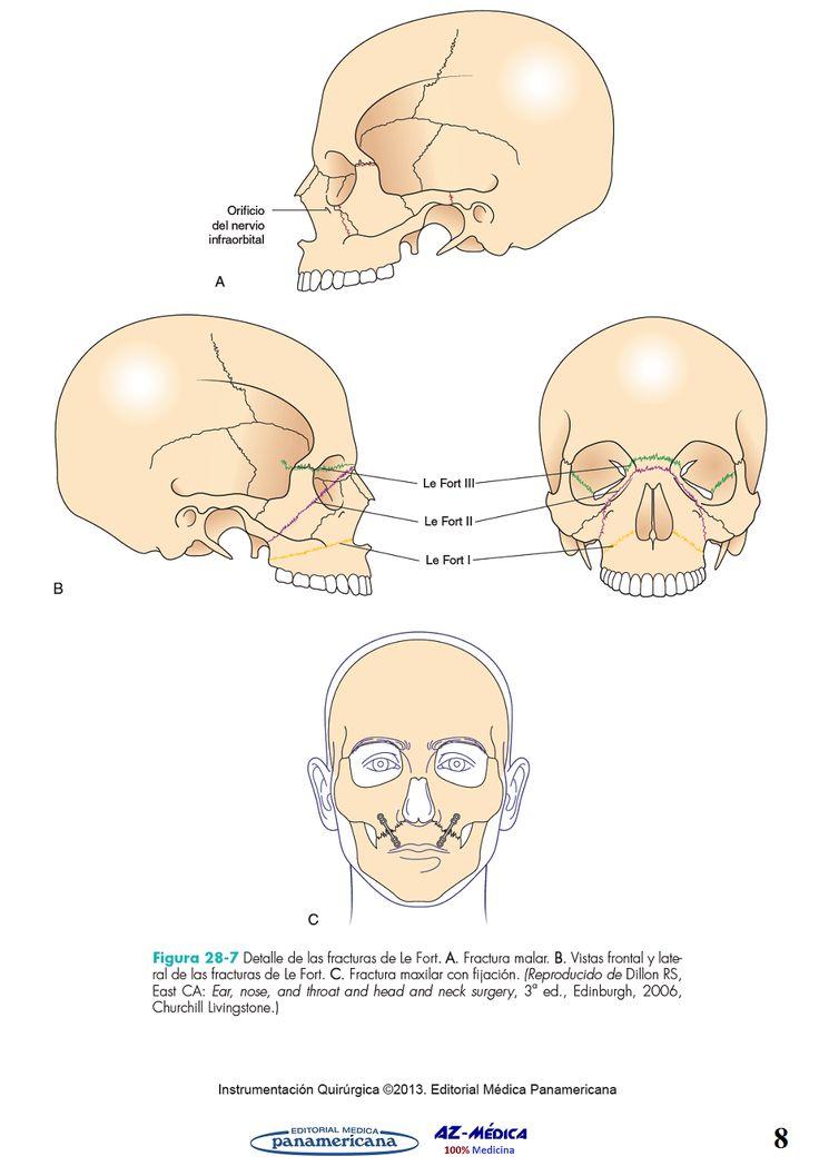 Cirugu00eda Bucal y Maxilofacial  #InstrumentacionQuirurgica #CirugiaOralyMaxilofacial #Medicina #LibreriaAZMedica