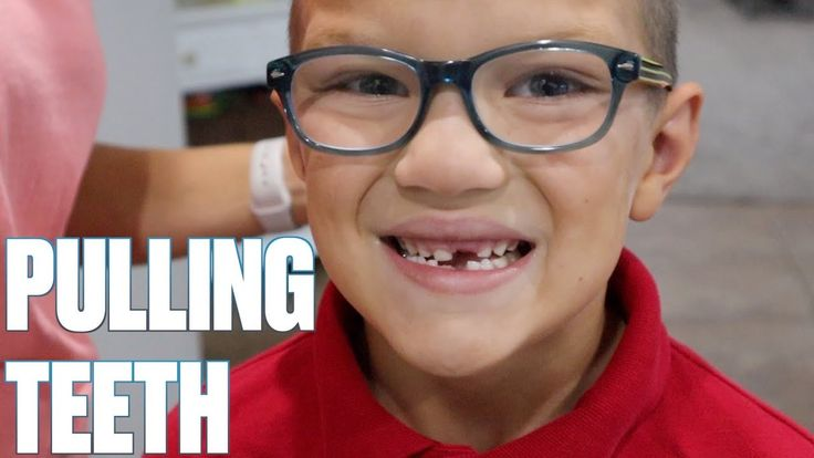 How to pull out a loose tooth pulling out three front