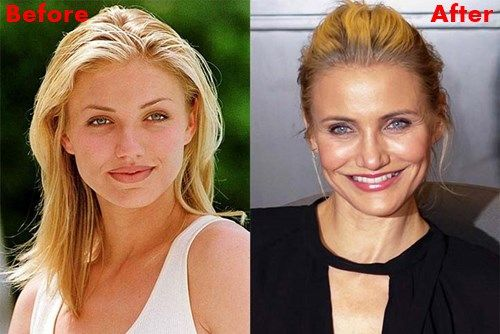 Cameron Diaz Plastics Surgery Before and After