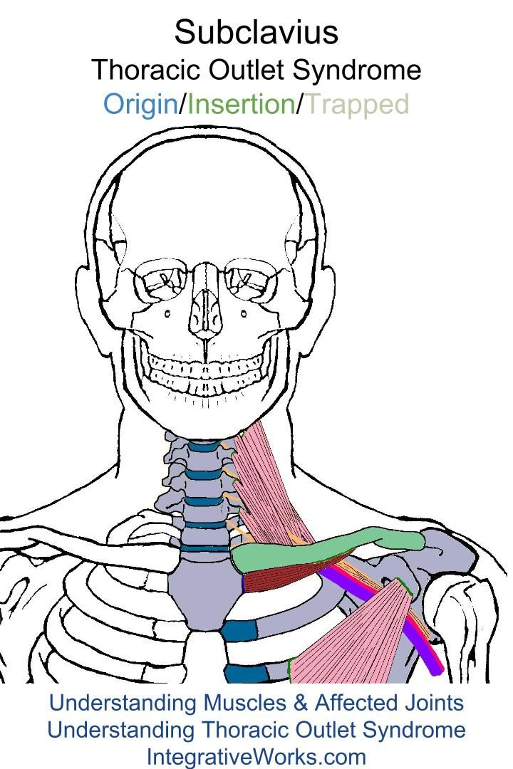 17 best thoracic outlet images on pinterest trigger points pain along the collar bone and down the arm ccuart Gallery