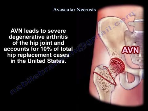 Avascular Necrosis, Osteonecrosis - Everything You Need To Know - Dr. Nabil Ebraheim - YouTube