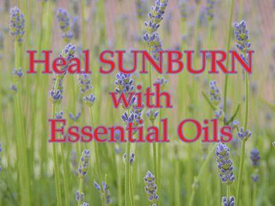 Heal Sunburn with Essential Oils: