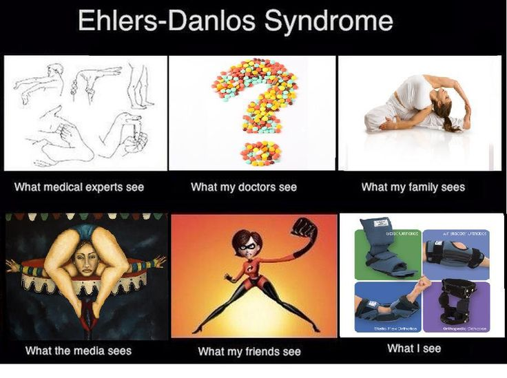 MAY is NATIONAL EHLERS DANLOS SYNDROME AWARENESS MONTH.. Here is a something I made... It may not be the same for all E.D.S people. Totallt true
