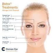 Bilderesultat for botox injection sites diagram