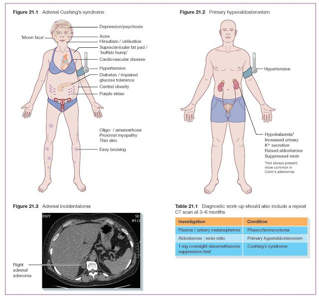 33+ An older woman with osteoporosis presents with pain and deformity info