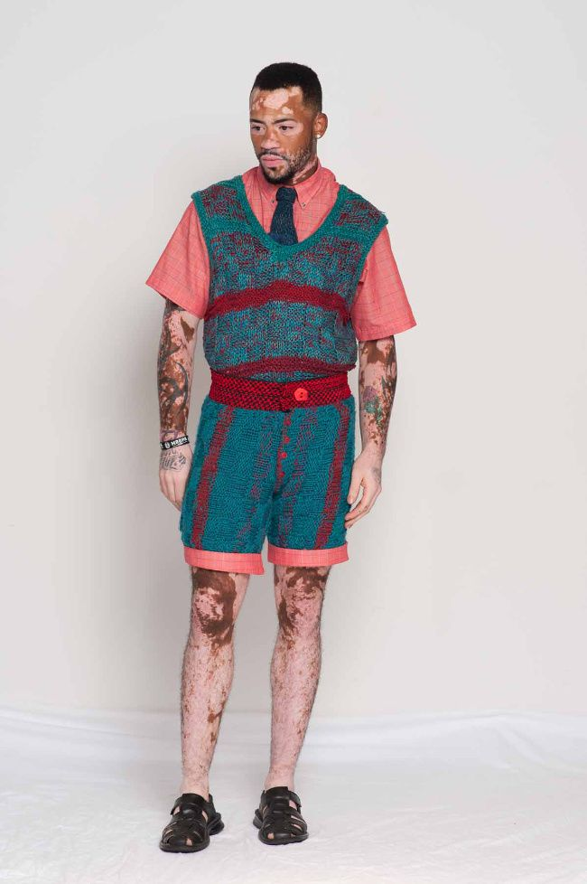 Vitiligo model wears his story in GSb Men's Couture, hand knit milti-color outfit with vest, shorts, and tie.
