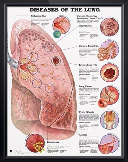 Diseases of the Lung anatomy poster shows prominent diseased lung with 8 close-up illustrations of specific diseases. Pulmonology for doctors and nurses.