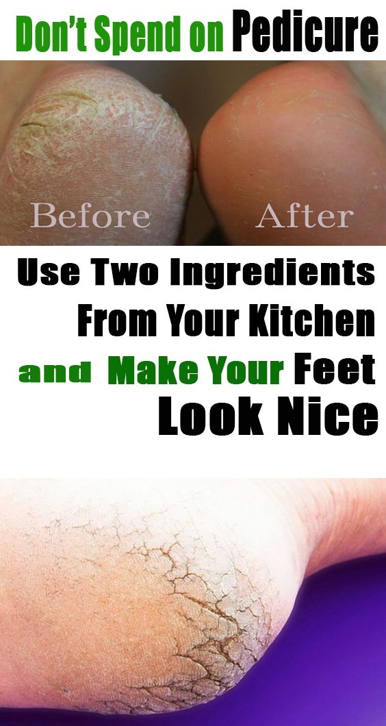 Most of the people ignore the beauty and health of their feet even though they are one of the most important body parts. Their hygiene and condition are very important and indicate your personal hygiene.