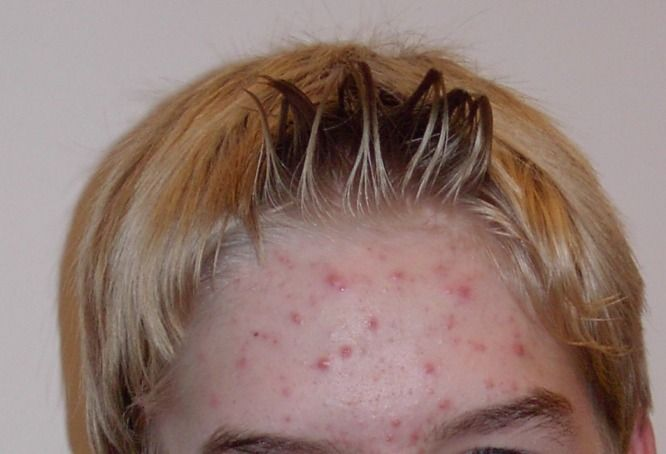Acne vulgaris (cystic acne or simply acne) is a common human skin disease, characterized by areas of skin with seborrhea (scaly red skin), comedones (blackheads and whiteheads), papules (pinheads), pustules (pimples), nodules (large papules) and possibly scarring.