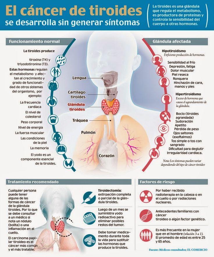 Aquí les dejo una infografía sobre el cáncer de tiroides Fuente: elcomercio.com