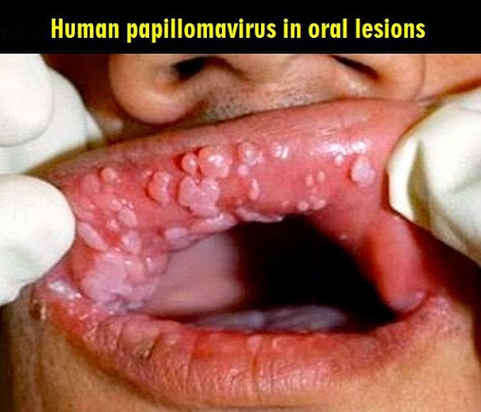 Human Papillomavirus (hpv) In Men 74 best Human P...