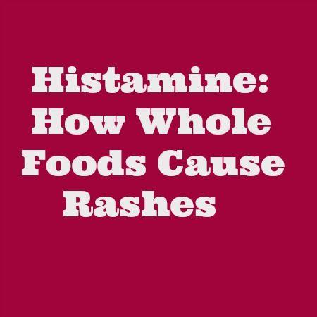 Whole Foods Eczema Treatments