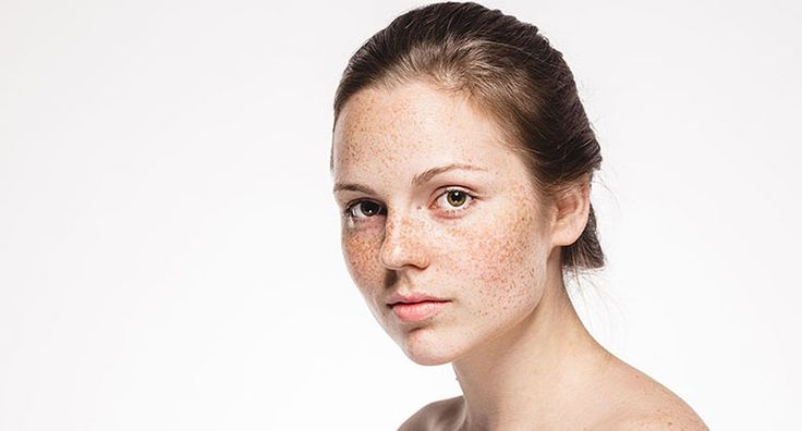 The Sharma Skin & Hair Clinic in Edmonton offers various Hyperpigmentation Treatment.Call for a personal consultation today.