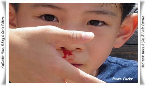 Sangue dal naso: i rimedi migliori