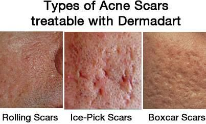 Home Remedies For Acne Ice Pick Scars