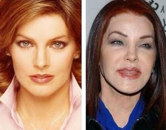 Priscilla Presley After Plastic Surgery Always interesting what you can find when you type in surgery and other related terms