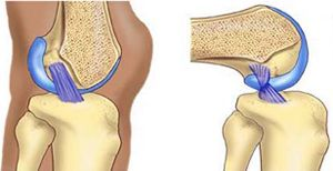 An anterior cruciate ligament (ACL) tear is an injury to the knee commonly affecting soccer players, basketball players, skiers, gymnasts, and other athletes. About 70% of ACL tears are the result of non-contact injuries; 30% are the result of direct contact (player-to-player, player-to-object). Women are 4-6 times more likely than men to experience an #ACL tear. #physicaltherapy