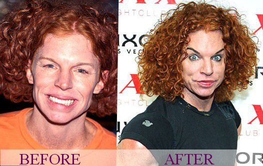 Carrot Top plastic surgery. Some are born dumb! Yep, you look pretty Dumb!