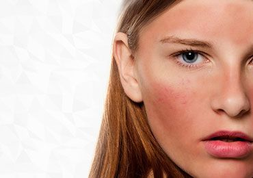 How to Treat Rosacea With the Homemade Remedies?